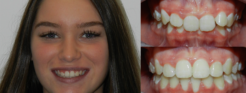 Invisalign Before and afters